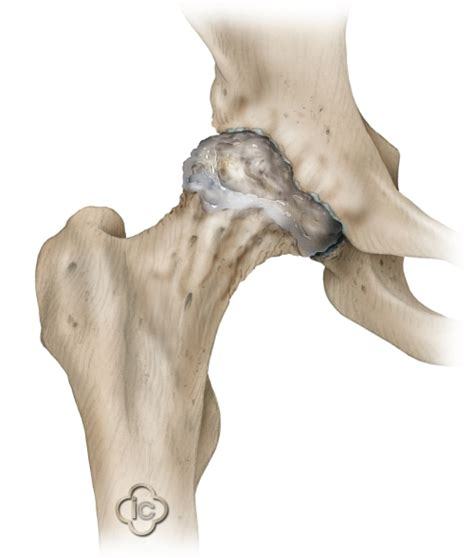 osteoarthritis hip joint picture 13