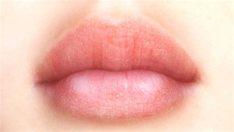 treatment for splits in corners of lips picture 5