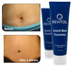 where to buy revitol stretchmark cream in south picture 13