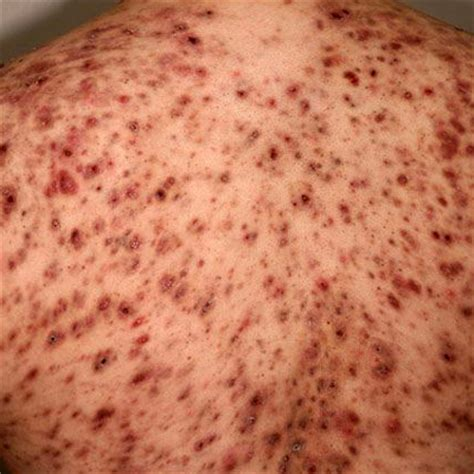 causes severe acne picture 14