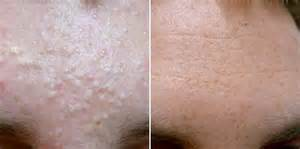 treating cystic acne picture 5