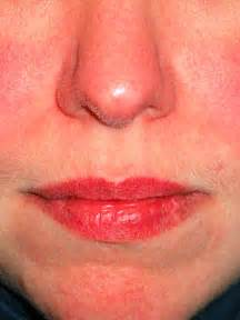 treatment for yeast rash under 's chin picture 13