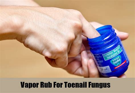yeast infection vapor rub picture 2