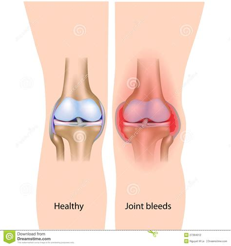 joint pain and irregular bleeding picture 1