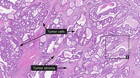adenoma and adenocarcinoma of colon different pathology picture 12