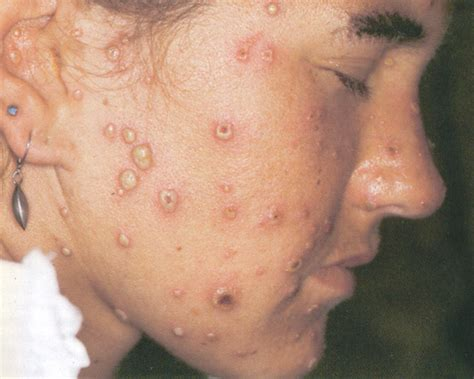 endocrine acne disorders picture 11