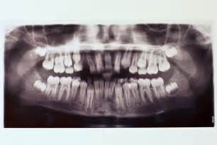 incoming wisdom teeth pain picture 5