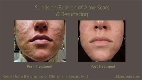 delaware acne and scar treatment md picture 11
