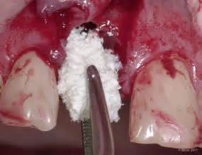 getting a second opinion when extracting teeth picture 10