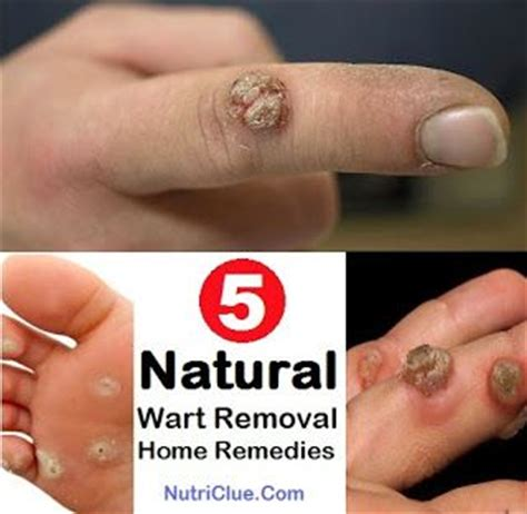 natural wart removal picture 3