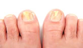 foot nail fungus picture 2