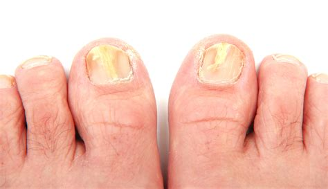picture of toenail fungus picture 6