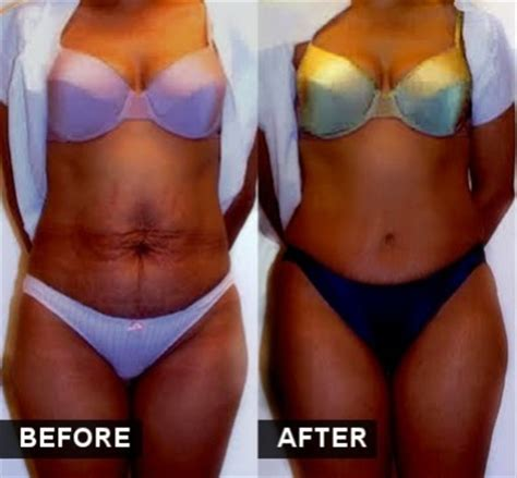 dr bilqees make homemade stretch marks remove cream picture 4