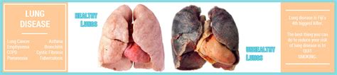 ill workcool that will workbacterial lung infection picture 27