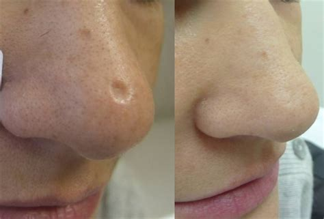 fraxel laser for acne scarring encino picture 5