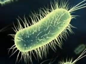 purchase tg1 bacterial strain picture 15