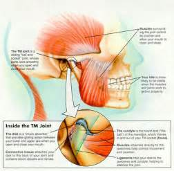 temporomandibular joint dysfunction picture 5