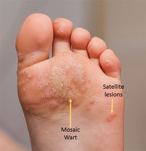 plantar wart pictures picture 5