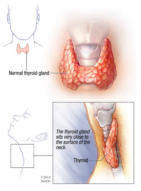 how to make under active thyroid high picture 12