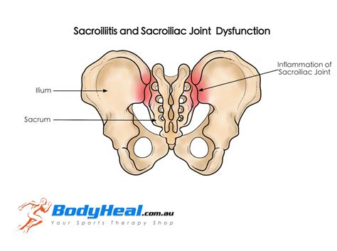 centers specializing in sacroiliac joint pain picture 17