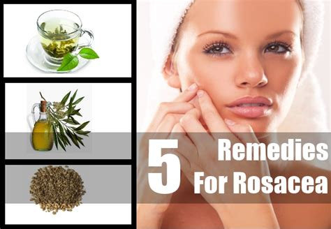 homemade herbal for rosacea picture 3
