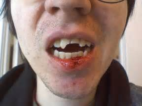 fractured jaw from pulling teeth picture 13