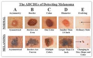 american skin cancer picture 1