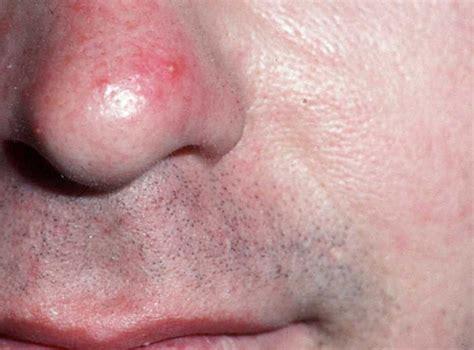 rosacea blisters picture 1