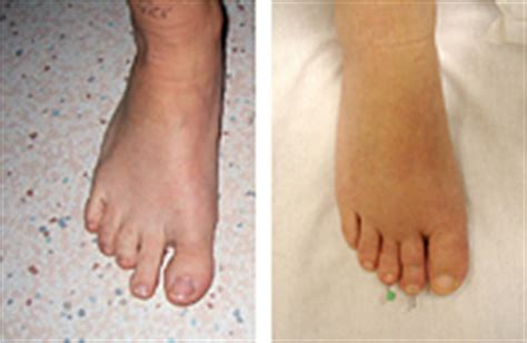 human growth hormone charcot marie tooth picture 13