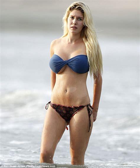 breast augmentation mishaps picture 11