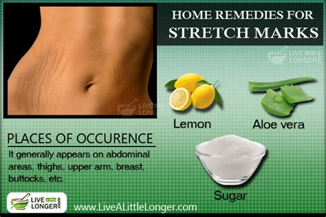 tobacco remedy for stretch marks picture 10