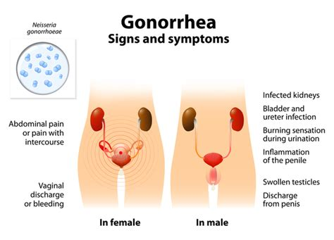 can rogotinor cure gonorrhea picture 7