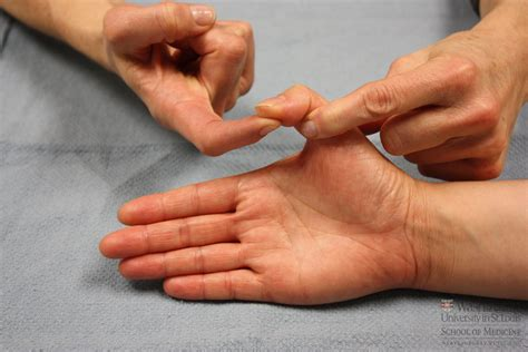allergies and thumb joint pain picture 9