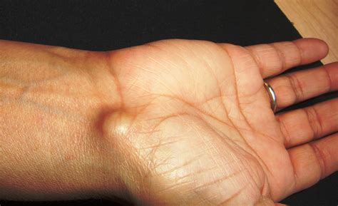 white or red thyme for ganglion cyst picture 8