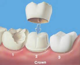 crown for teeth picture 1