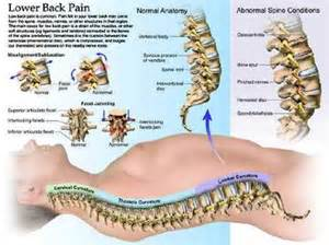 back pain ociated with colon cancer picture 6