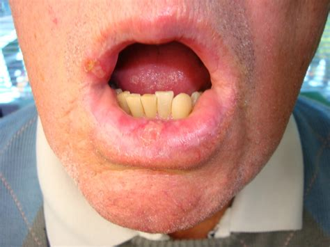 lips herpes simplex picture 2