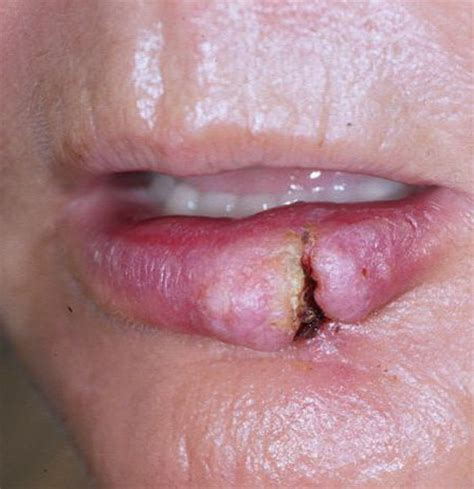 cancer lip picture 15