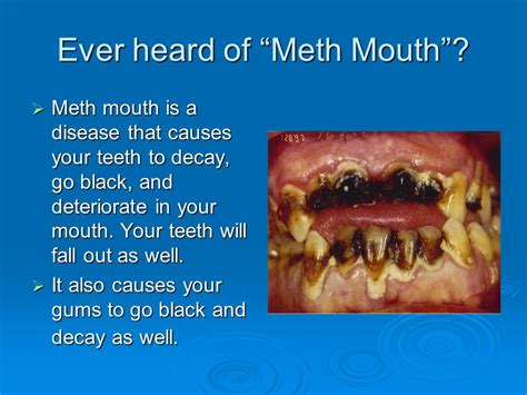 drugs affect on teeth and gums picture 3