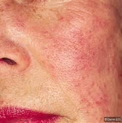 rosacea laser treatment picture 1