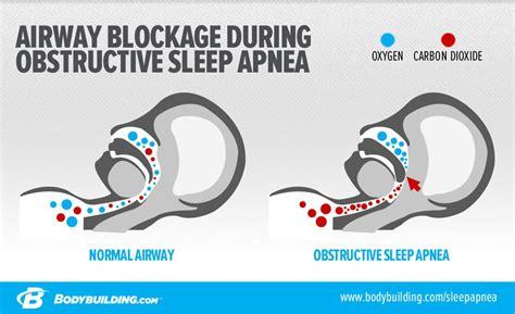 can sleep apnea be start of chronic beryllium picture 6