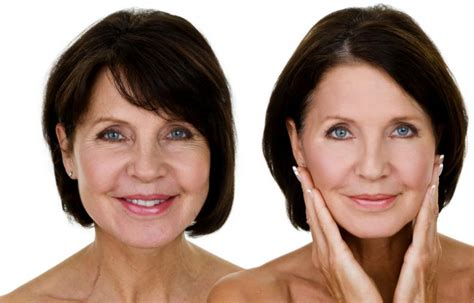women before and after aging picture 3