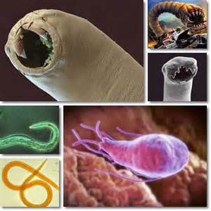 signs of intestinal worms in humans picture 6