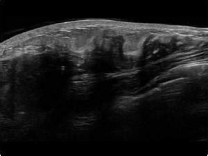 skin cancer invades nerves picture 3