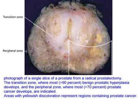 Webmd prostate cancer radiation treatment picture 10