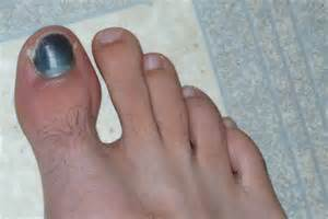 toenail fungus pictures black toenails picture 5
