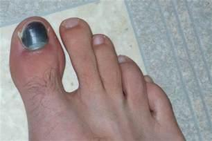 laser toenail fungus treatment in illinois picture 19