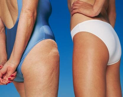 mesotherapy for cellulite elimination picture 1