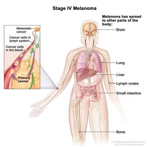 bone cancer spread to the liver + prognosis picture 15