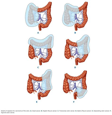 colon cancer surgery view picture 1